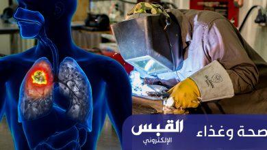 Photo of أبخرة اللحام.. تسبب سرطان الرئة
