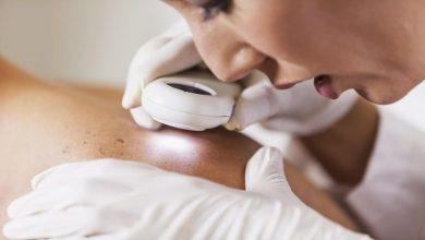 Photo of كيف تكشف علامات سرطان الجلد مع ارتفاع درجات الحرارة