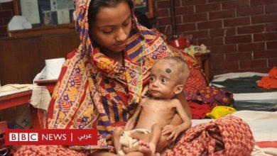 Photo of سوء التغذية: الموز والحمص والفول السوداني أفضل أغذية لعلاج المرض