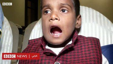Photo of إزالة 526 سن من فم طفل