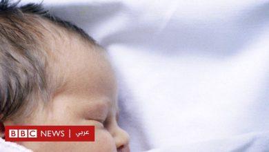"""Photo of الكشف عن سر ظهور أعراض """"متلازمة المستذئب"""" لدى أطفال في إسبانيا"""