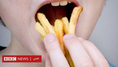 Photo of أصيب بالعمى بعدما عاش على أكل البطاطا المقلية ورقائق البطاطس فقط