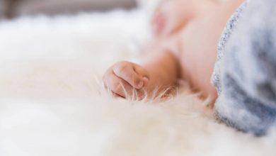 Photo of ولادة طفل من دون وجه تهز البرتغال