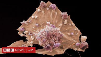 "Photo of علماء يدرسون نشأة ""السرطان"" بهدف العلاج المبكر"