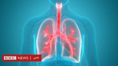 Photo of العثور على أنسجة دهنية لأول مرة في رئة أشخاص يعانون السِمنة