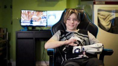Photo of صبي يحصل على أول طرف صناعي مستوحى من أفلام حرب النجوم