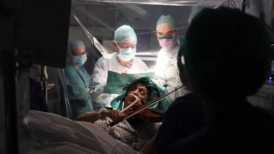Photo of عازفة كمان تعزف خلال عملية جراحية | جريدة الأنباء