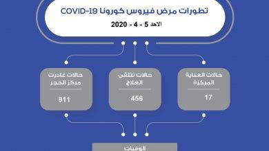 Photo of تطورات فيروس كورونا في دولة الكويت اليوم الأحد 5 أبريل