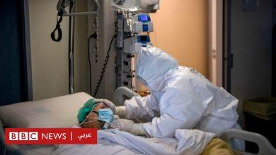 Photo of فيروس كورونا: كيف يتعافى المريض بعد نقله إلى وحدة العناية المركزة؟