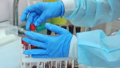 Photo of ارتفاع عدد حالات الإصابة المؤكدة بفيروس كورونا في ألمانيا إلى