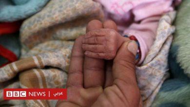 "Photo of الحرب في اليمن: 400 ألف طفل ""معرضون لخطر الموت جوعا"" – الاندبندنت"