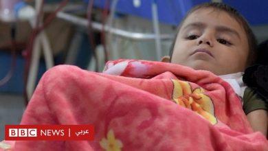 Photo of فيروس كورونا: أطباء يمنيون يتحدثون عن تدهور الأوضاع