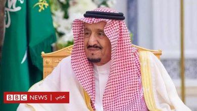 Photo of الملك السعودي سلمان بن عبد العزيز يدخل إلى المستشفى بسبب التهاب في المرارة