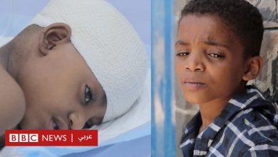 Photo of حرب اليمن: طفل ينقذ حياة أخته بعد أن أصابها رصاص قناص في تعز