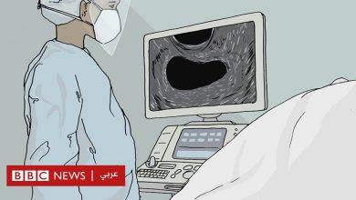 """Photo of الإجهاض في زمن كورونا: """"كان مفزعاً معرفة أن قلب جنيني توقف وأنا بمفردي"""""""