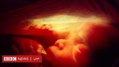 Photo of الحمل: هل يُمكن الحفاظ على خصوبة المرأة رغم تقدمها في السن؟