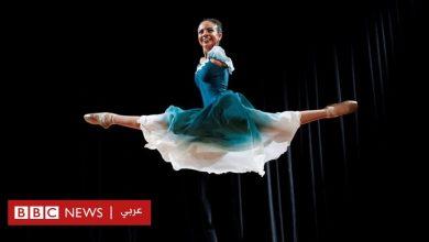 Photo of ذوي الإعاقة: راقصة باليه دون ذراعين تتغلب على التنمر وتسعى إلى إلهام الآخرين