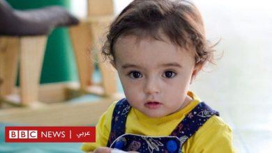 Photo of فيروس كورونا: لماذا يموت كثير من الأطفال بسبب كوفيد-19 في البرازيل؟
