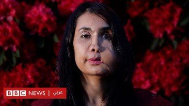 Photo of أفغانستان: خضعت لـ 22 عملية بعد أن أطلق زوجها النار على وجهها